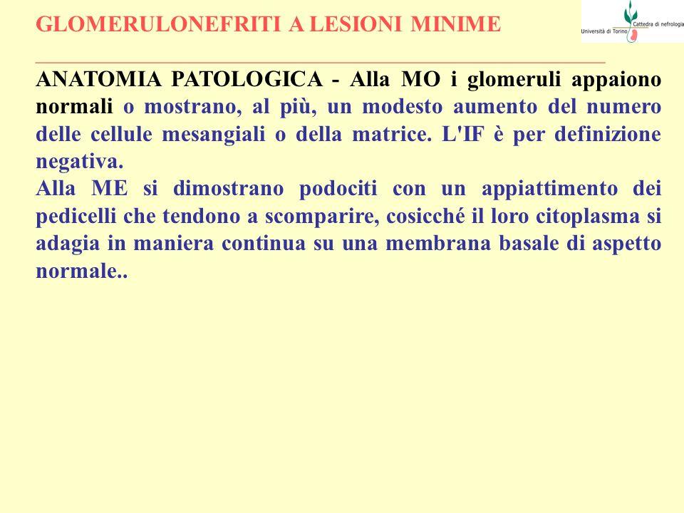 GLOMERULONEFRITI A LESIONI MINIME QUADRO CLINICO - L esordio clinico può essere immediatamente preceduto da un infezione delle vie aeree superiori (25-30% dei casi) o da fenomeni allergici.