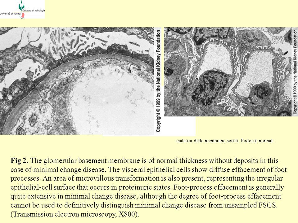 Per i sostenitori della teoria unitaria, si tratta invece di malattie con patogenesi comune e che differiscono nella gravità e nell espressione anatomoclinica.