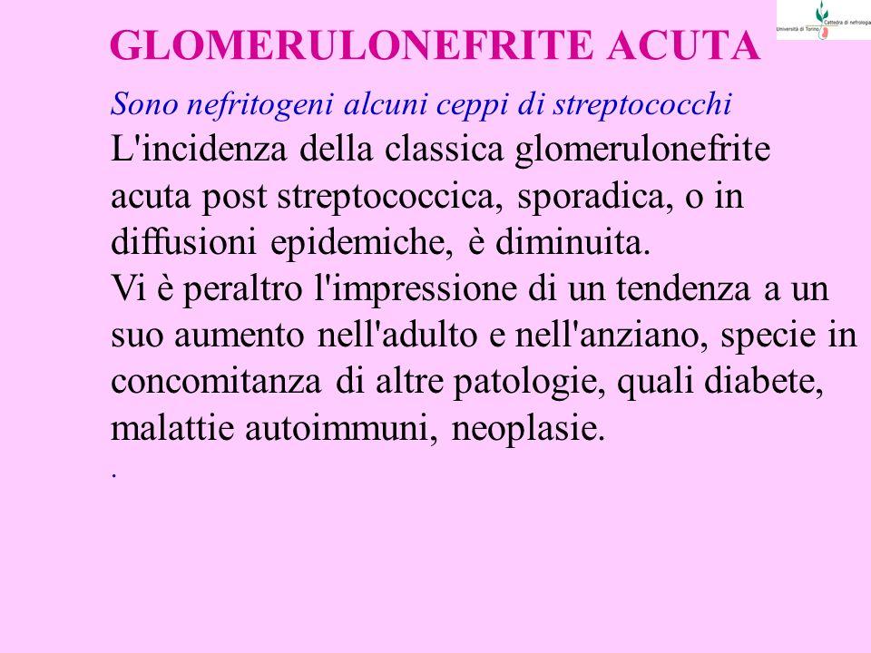GLOMERULONEFRITE ACUTA Sono nefritogeni alcuni ceppi di streptococchi L incidenza della classica glomerulonefrite acuta post streptococcica, sporadica, o in diffusioni epidemiche, è diminuita.