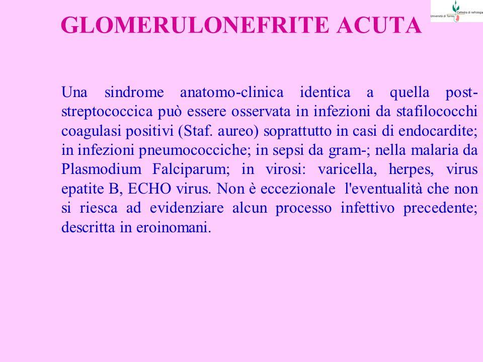 GLOMERULONEFRITE ACUTA Una sindrome anatomo-clinica identica a quella post- streptococcica può essere osservata in infezioni da stafilococchi coagulasi positivi (Staf.