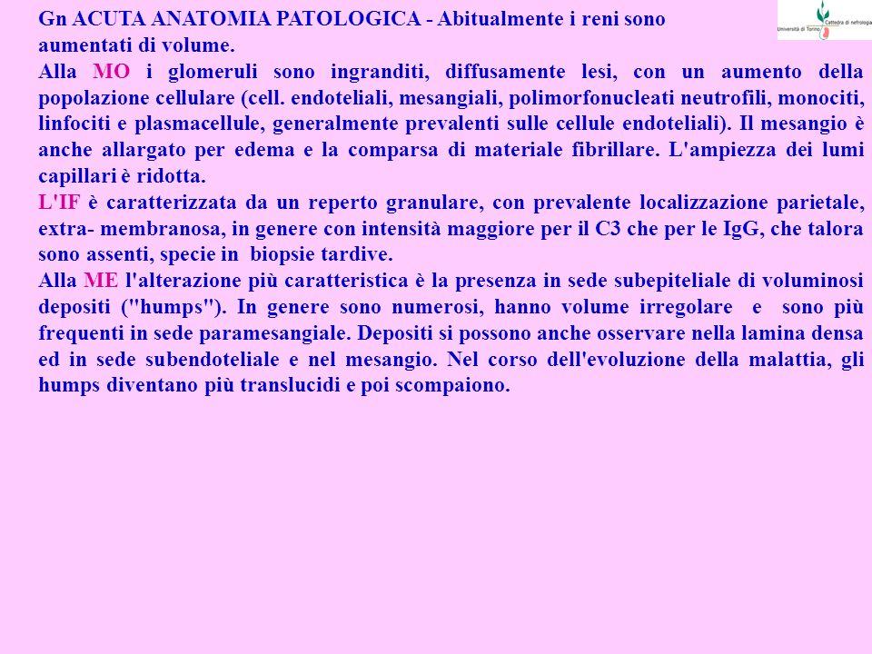 Gn ACUTA ANATOMIA PATOLOGICA - Abitualmente i reni sono aumentati di volume.
