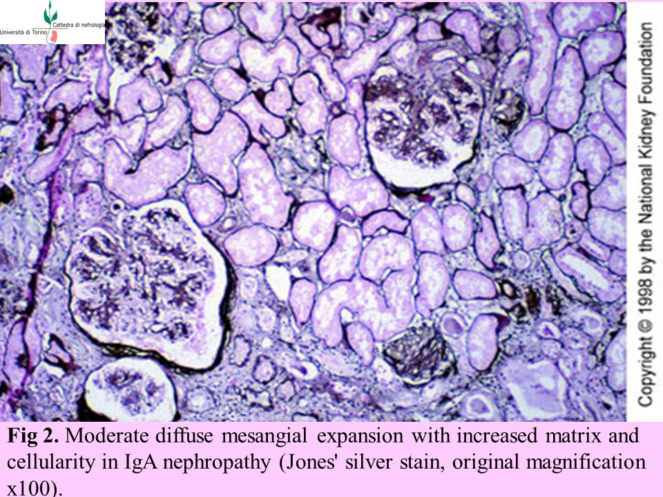 Fig 2. Moderate diffuse mesangial expansion with increased matrix and cellularity in IgA nephropathy (Jones' silver stain, original magnification x100