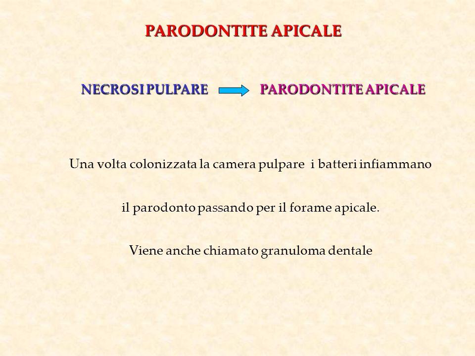 PARODONTITE APICALE NECROSI PULPARE PARODONTITE APICALE Una volta colonizzata la camera pulpare i batteri infiammano il parodonto passando per il fora