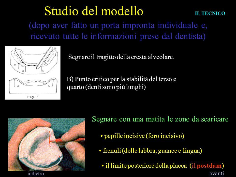 Studio del modello (dopo aver fatto un porta impronta individuale e, ricevuto tutte le informazioni prese dal dentista) Segnare il tragitto della cres