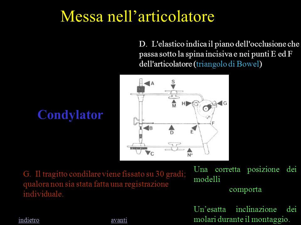 Messa nellarticolatore Condylator D. L'elastico indica il piano dell'occlusione che passa sotto la spina incisiva e nei punti E ed F dell'articolatore