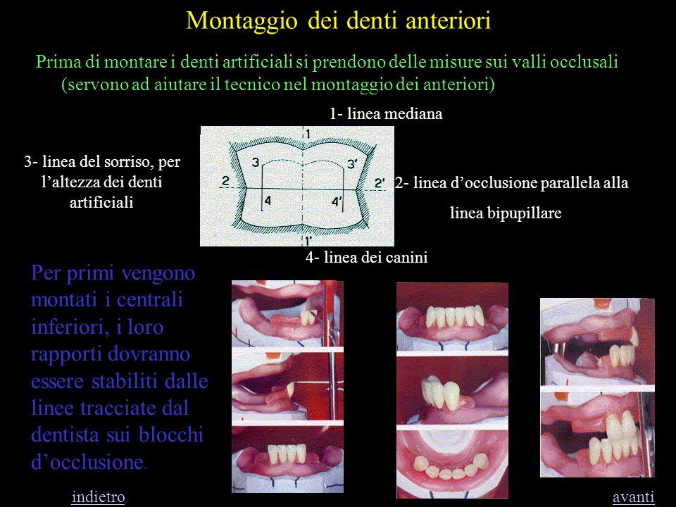 Montaggio dei denti anteriori Per primi vengono montati i centrali inferiori, i loro rapporti dovranno essere stabiliti dalle linee tracciate dal dent