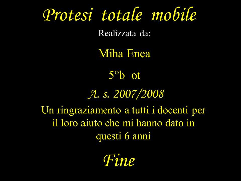 Protesi totale mobile Realizzata da: Miha Enea 5°b ot Fine Un ringraziamento a tutti i docenti per il loro aiuto che mi hanno dato in questi 6 anni A.