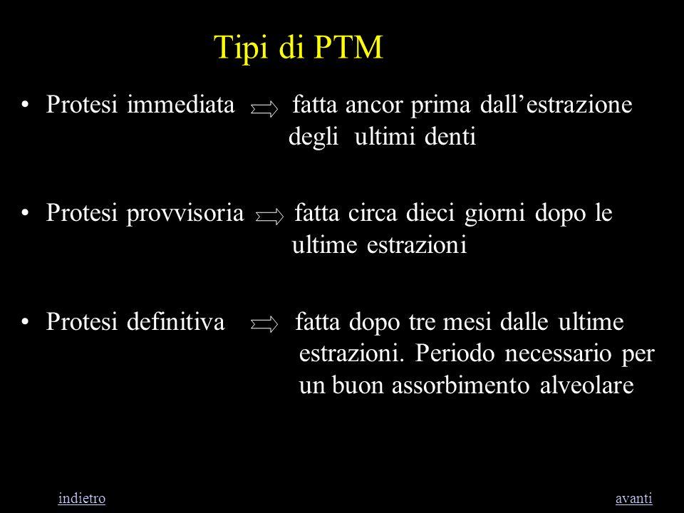 Tipi di PTM Protesi immediata fatta ancor prima dallestrazione degli ultimi denti Protesi provvisoria fatta circa dieci giorni dopo le ultime estrazio