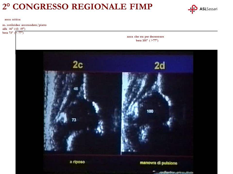 2° CONGRESSO REGIONALE FIMP anca critica m. cotiloideo arrotondato/piatto alfa 46° (43- 49°) beta 73° ( 77°)