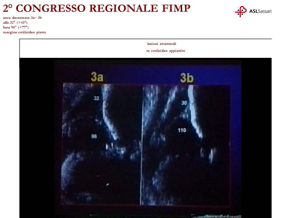 2° CONGRESSO REGIONALE FIMP anca decentrata 3a– 3b alfa 32° (>43°) beta 96° (>77°) margine cotiloideo piatto lesioni strutturali m cotiloideo appiatti