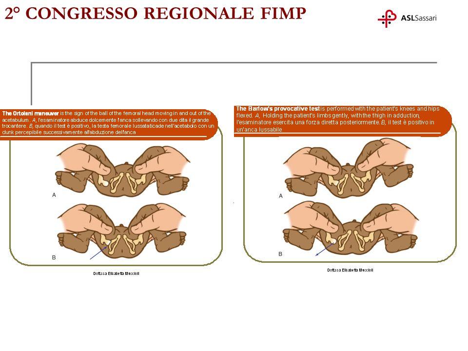 2° CONGRESSO REGIONALE FIMP oltre i tre mesi ritardo do ossificazione (iniziale displasia) angolo alfa 53° (50°-59°) angolo beta 75°( >55 ) m.