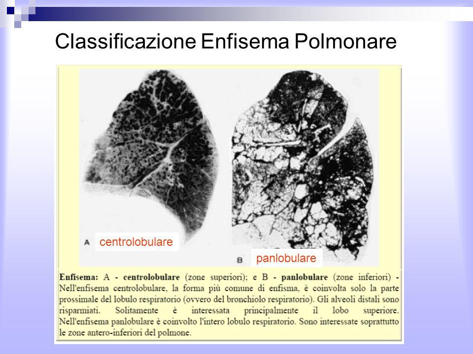 Classificazione Enfisema Polmonare centrolobulare panlobulare