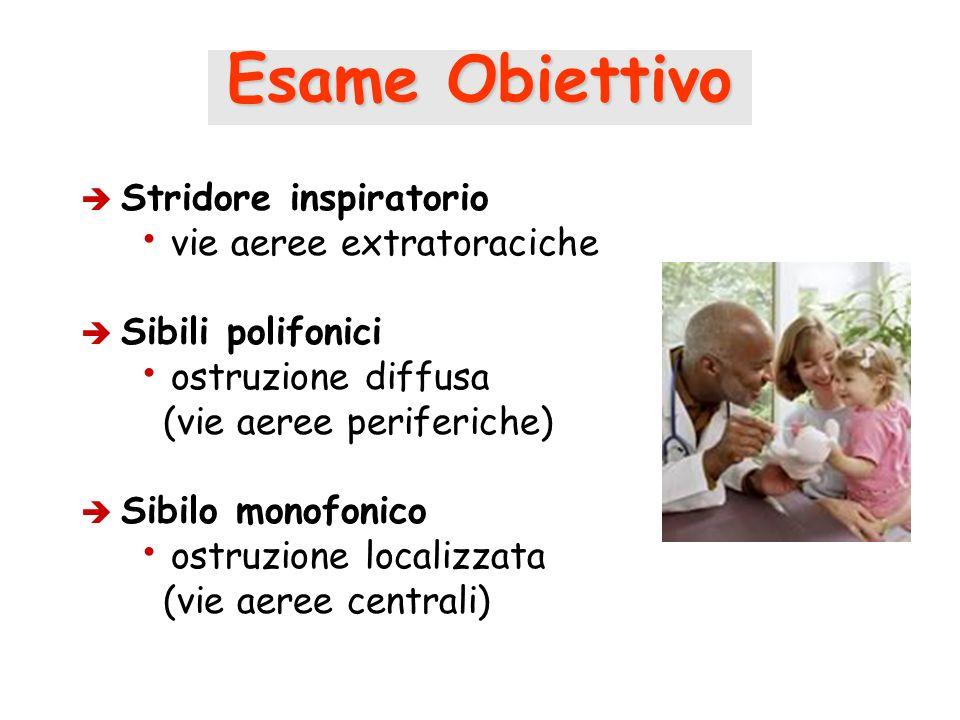 Esame Obiettivo Stridore inspiratorio vie aeree extratoraciche Sibili polifonici ostruzione diffusa (vie aeree periferiche) Sibilo monofonico ostruzio