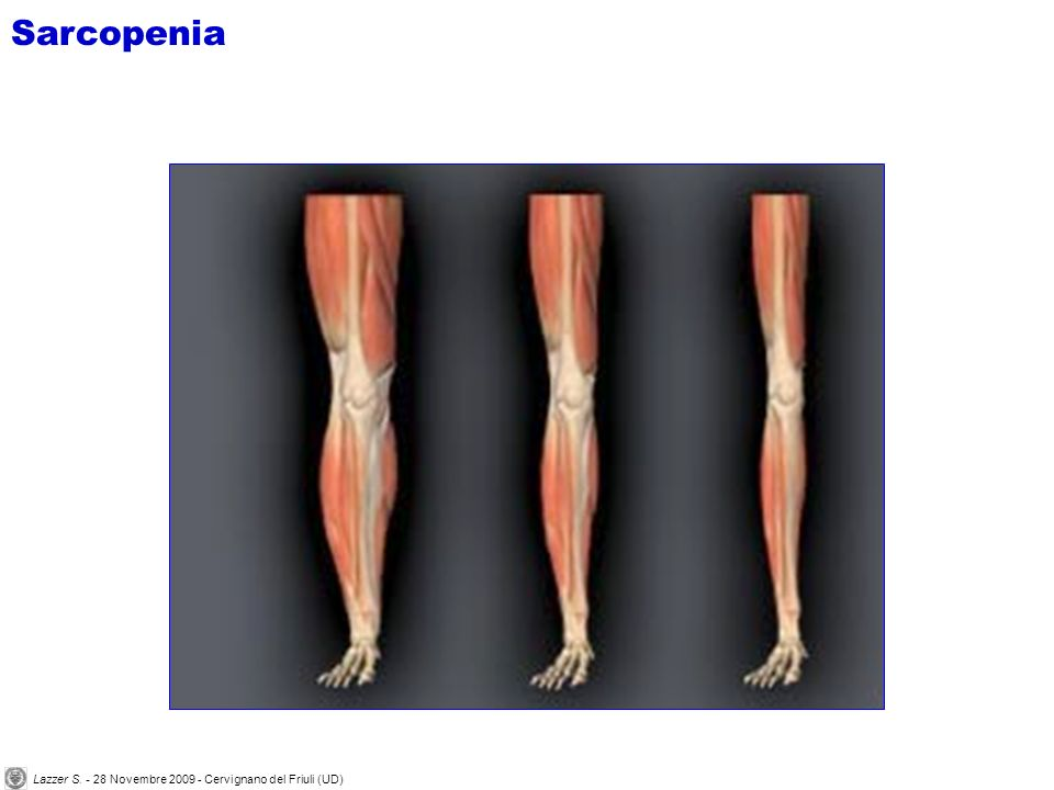 -27% 25 anni maschio 75 anni maschio Area di sezione muscolare Sarcopenia Lazzer S.
