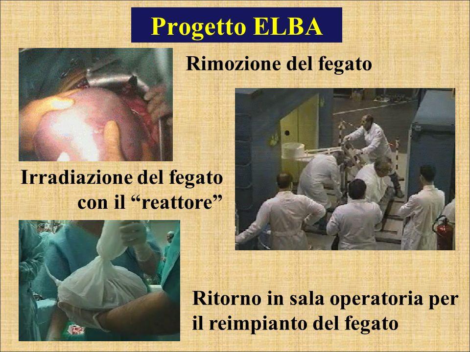 Progetto ELBA Rimozione del fegato Irradiazione del fegato con il reattore Ritorno in sala operatoria per il reimpianto del fegato