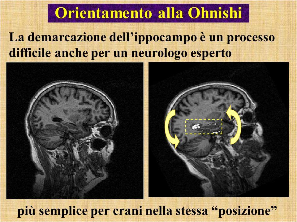 Orientamento alla Ohnishi La demarcazione dellippocampo è un processo difficile anche per un neurologo esperto più semplice per crani nella stessa pos