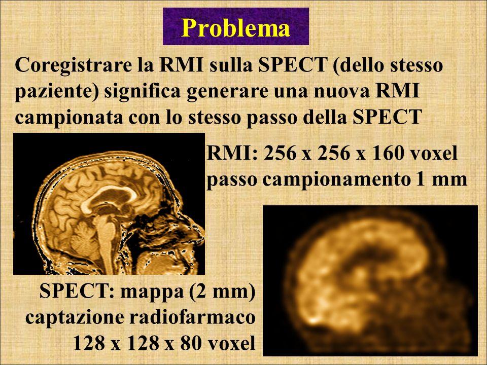 Coregistrare la RMI sulla SPECT (dello stesso paziente) significa generare una nuova RMI campionata con lo stesso passo della SPECT Problema SPECT: ma