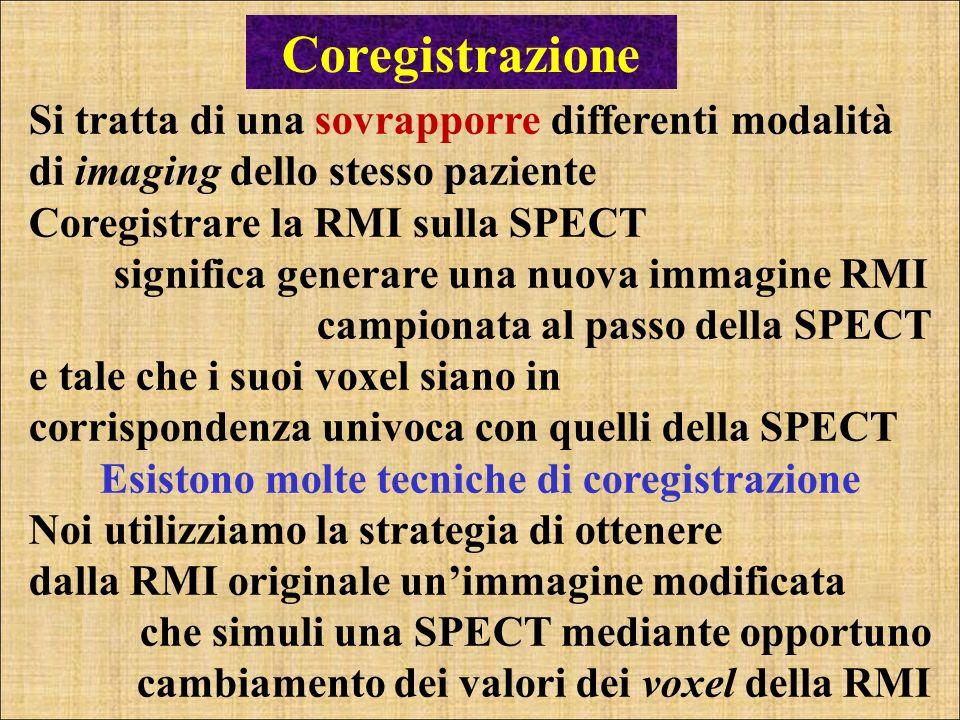 Coregistrazione Si tratta di una sovrapporre differenti modalità di imaging dello stesso paziente Coregistrare la RMI sulla SPECT significa generare u
