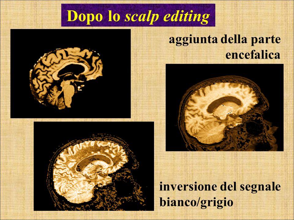 aggiunta della parte encefalica Dopo lo scalp editing inversione del segnale bianco/grigio