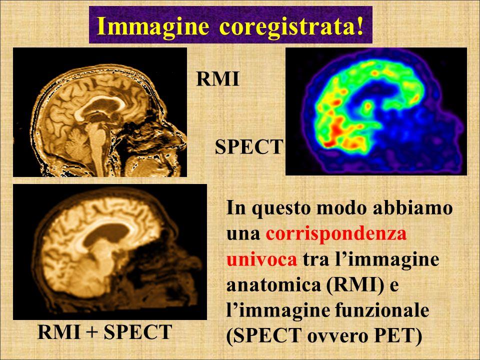 Immagine coregistrata! RMI RMI + SPECT In questo modo abbiamo una corrispondenza univoca tra limmagine anatomica (RMI) e limmagine funzionale (SPECT o