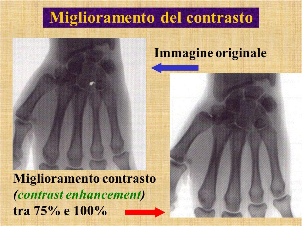 Miglioramento del contrasto Miglioramento contrasto (contrast enhancement) tra 75% e 100% Immagine originale