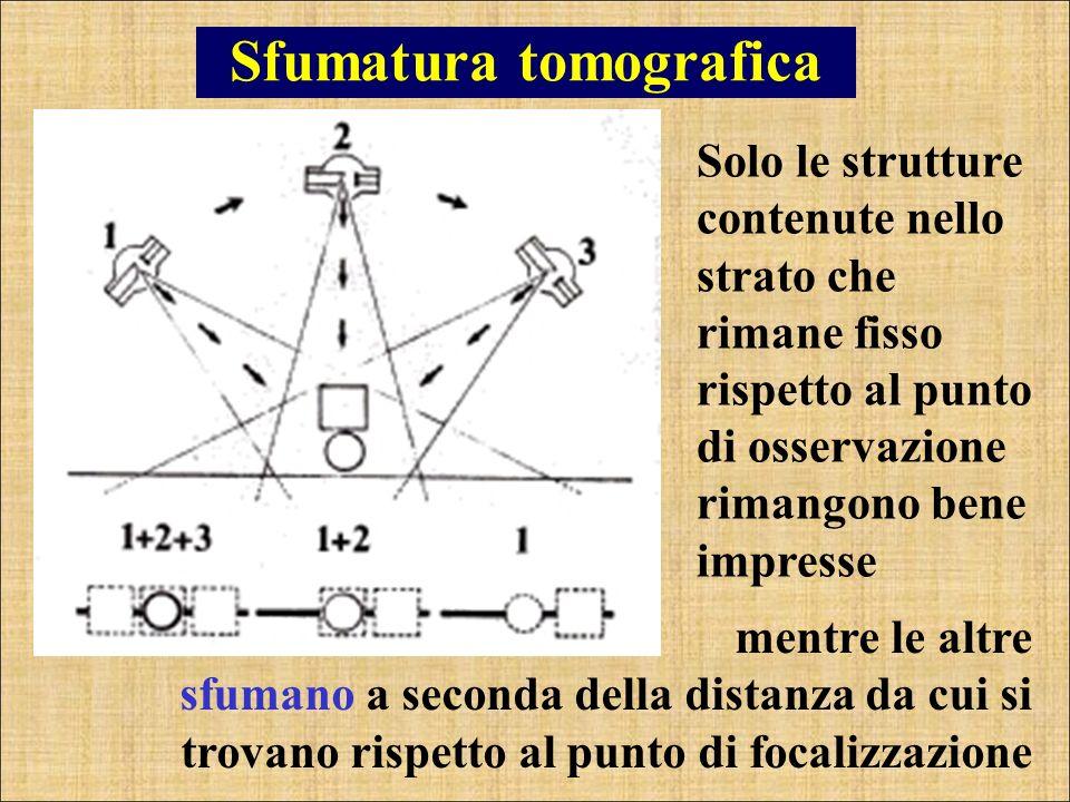 Sfumatura tomografica mentre le altre sfumano a seconda della distanza da cui si trovano rispetto al punto di focalizzazione Solo le strutture contenu
