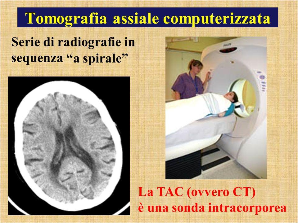 Tomografia assiale computerizzata Serie di radiografie in sequenza La TAC (ovvero CT) è una sonda intracorporea a spirale