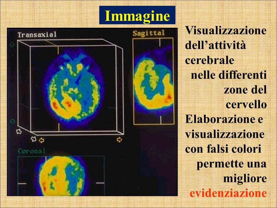 Immagine Visualizzazione dellattività cerebrale nelle differenti zone del cervello Elaborazione e visualizzazione con falsi colori permette una miglio