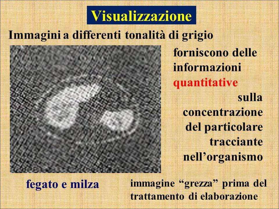 Visualizzazione Immagini a differenti tonalità di grigio fegato e milza forniscono delle informazioni quantitative sulla concentrazione del particolar