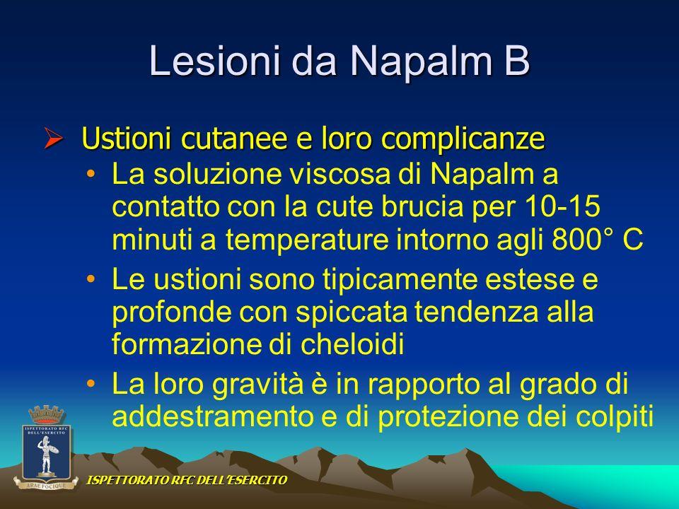 Lesioni da Napalm B La soluzione viscosa di Napalm a contatto con la cute brucia per 10-15 minuti a temperature intorno agli 800° C Le ustioni sono ti