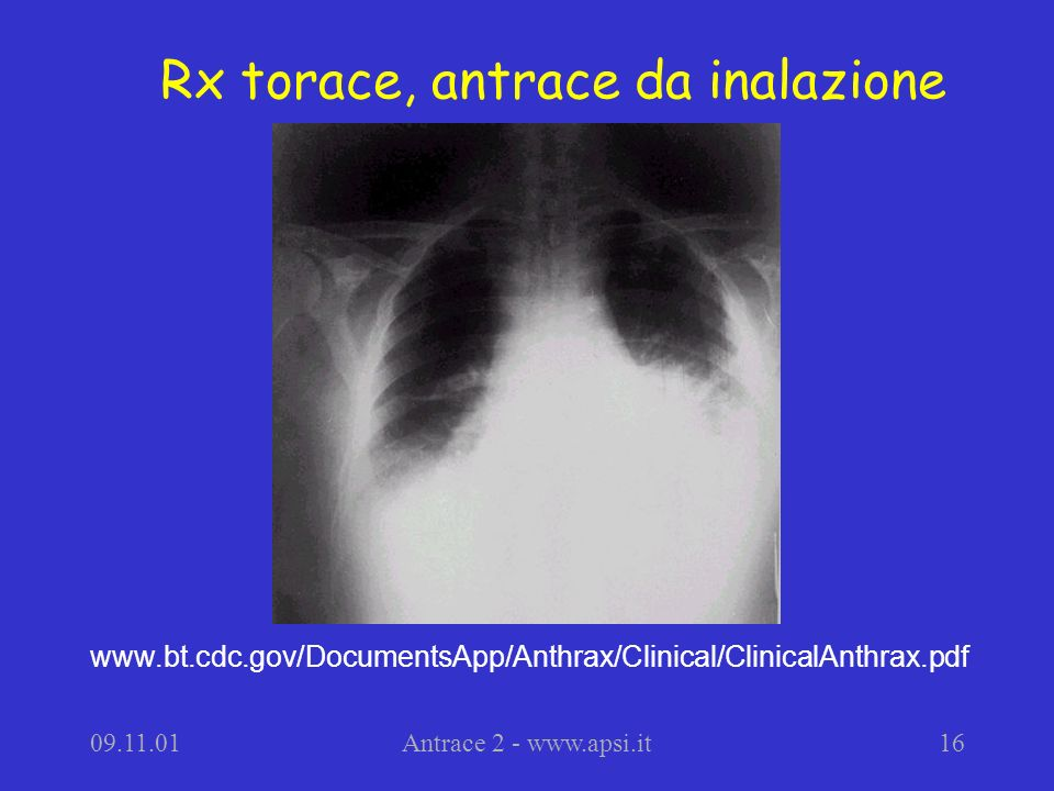 09.11.01Antrace 2 - www.apsi.it16 Rx torace, antrace da inalazione www.bt.cdc.gov/DocumentsApp/Anthrax/Clinical/ClinicalAnthrax.pdf
