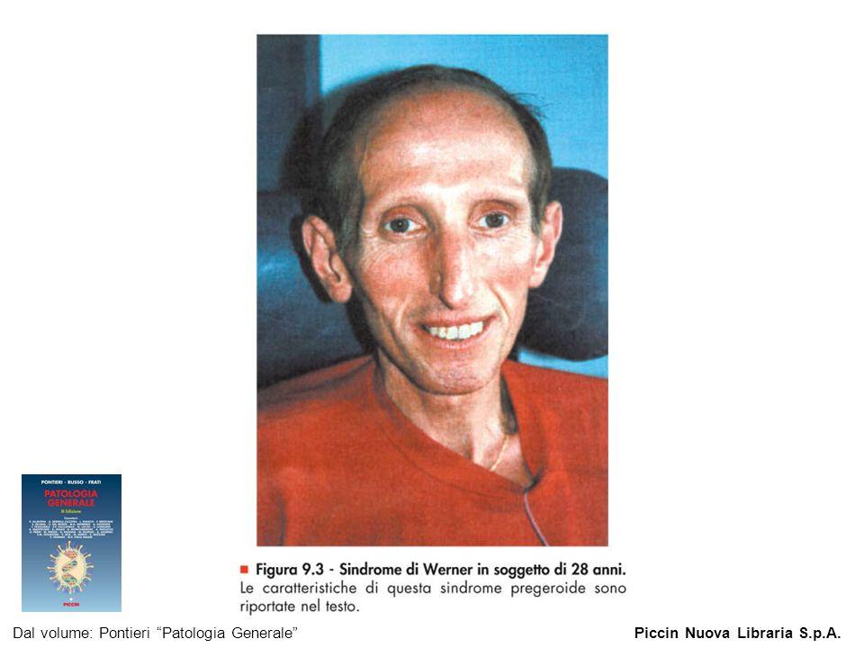 Figura 9.3 - Sindrome di Werner in soggetto di 28 anni. Dal volume: Pontieri Patologia GeneralePiccin Nuova Libraria S.p.A.