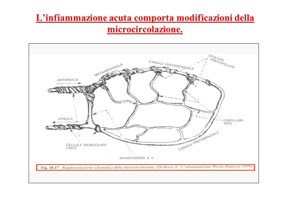 Linfiammazione acuta comporta modificazioni della microcircolazione.