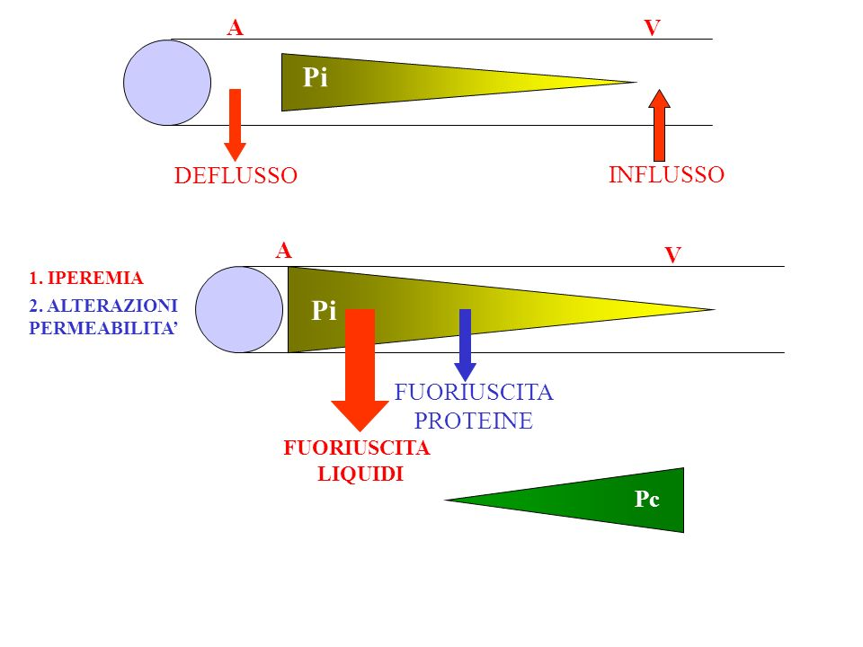A V Pi DEFLUSSO INFLUSSO A V Pi 1. IPEREMIA FUORIUSCITA LIQUIDI 2. ALTERAZIONI PERMEABILITA FUORIUSCITA PROTEINE Pc
