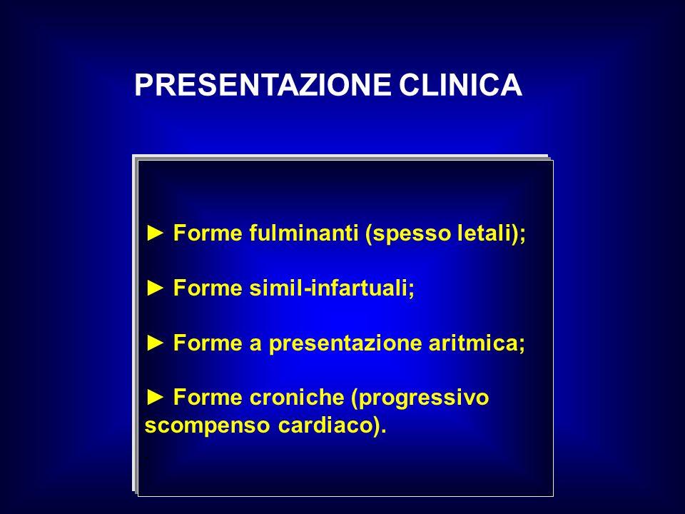 PRESENTAZIONE CLINICA Forme fulminanti (spesso letali); Forme simil-infartuali; Forme a presentazione aritmica; Forme croniche (progressivo scompenso