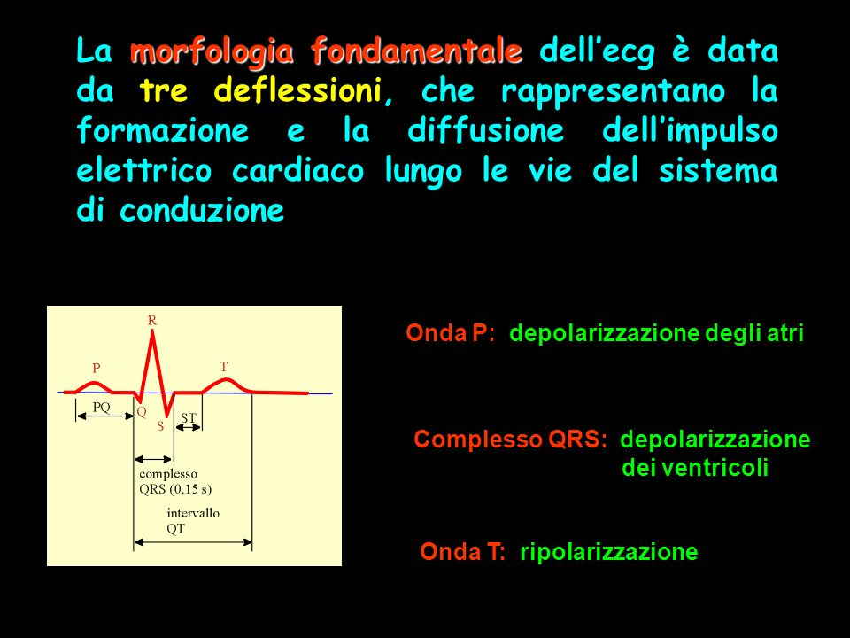 morfologia fondamentale La morfologia fondamentale dellecg è data da tre deflessioni, che rappresentano la formazione e la diffusione dellimpulso elet
