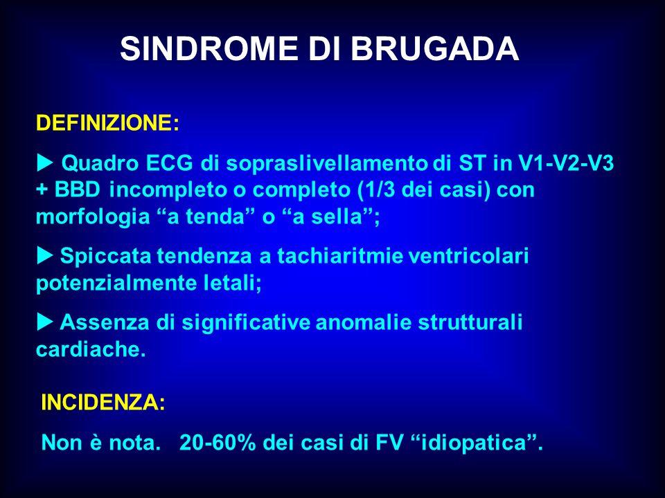 SINDROME DI BRUGADA DEFINIZIONE: Quadro ECG di sopraslivellamento di ST in V1-V2-V3 + BBD incompleto o completo (1/3 dei casi) con morfologia a tenda