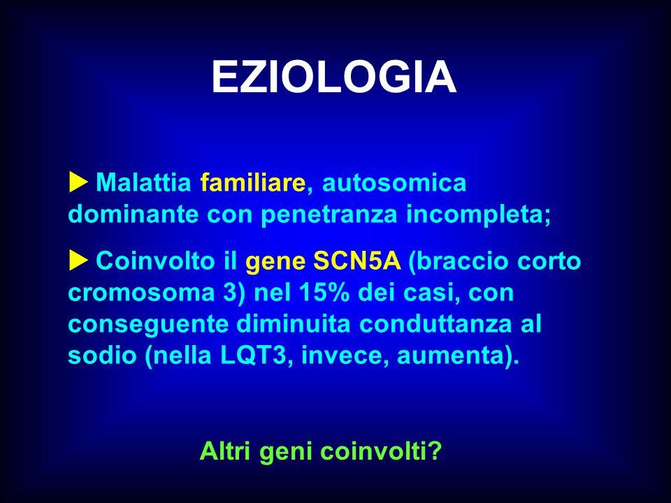 EZIOLOGIA Malattia familiare, autosomica dominante con penetranza incompleta; Coinvolto il gene SCN5A (braccio corto cromosoma 3) nel 15% dei casi, co