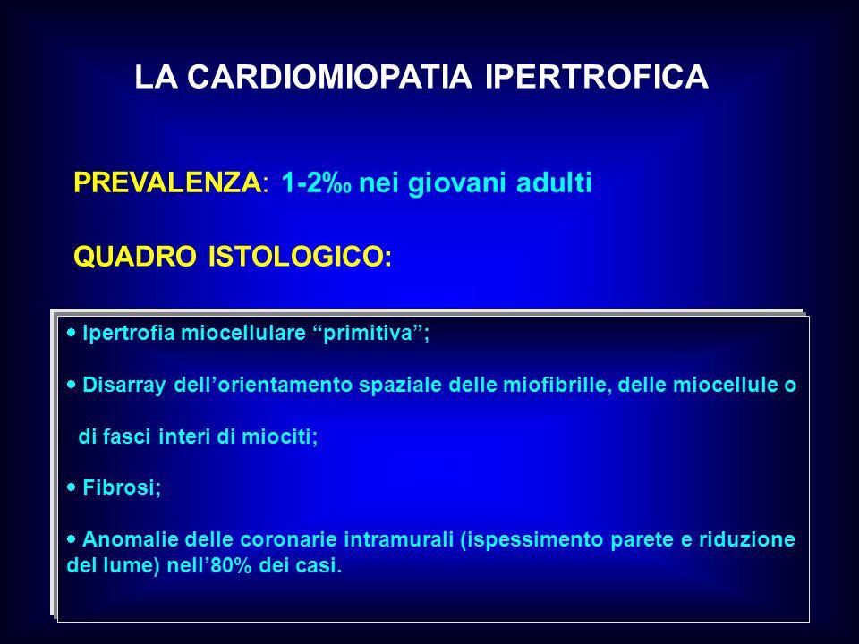 QUADRO ISTOLOGICO: PREVALENZA: 1-2 nei giovani adulti LA CARDIOMIOPATIA IPERTROFICA Ipertrofia miocellulare primitiva; Disarray dellorientamento spazi