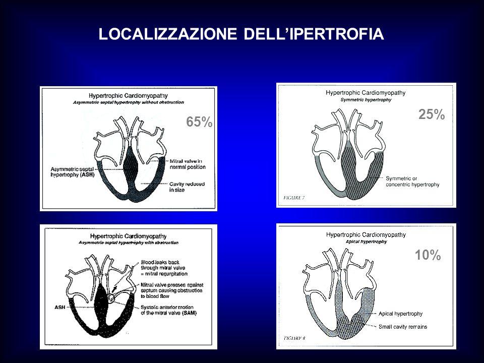 65% 25% 10% LOCALIZZAZIONE DELLIPERTROFIA