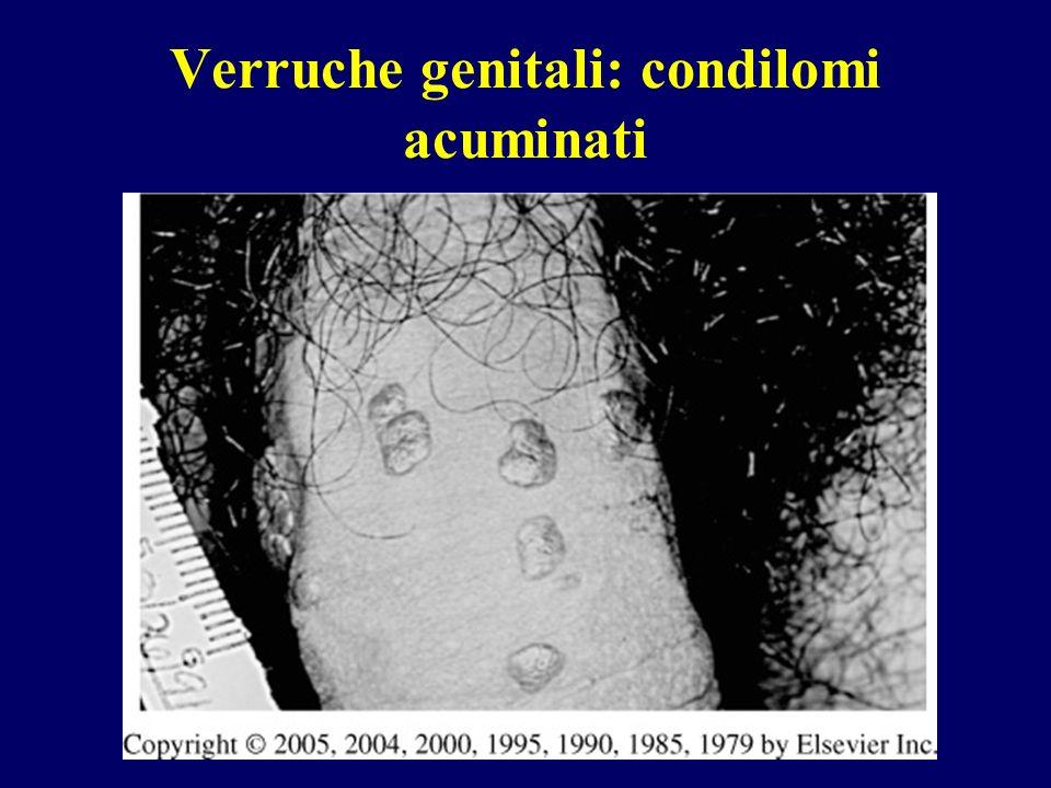 Verruche genitali: condilomi acuminati