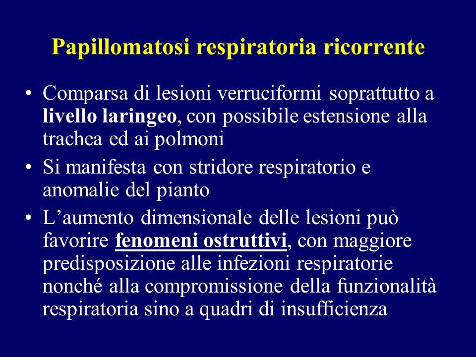 Papillomatosi respiratoria ricorrente Comparsa di lesioni verruciformi soprattutto a livello laringeo, con possibile estensione alla trachea ed ai pol