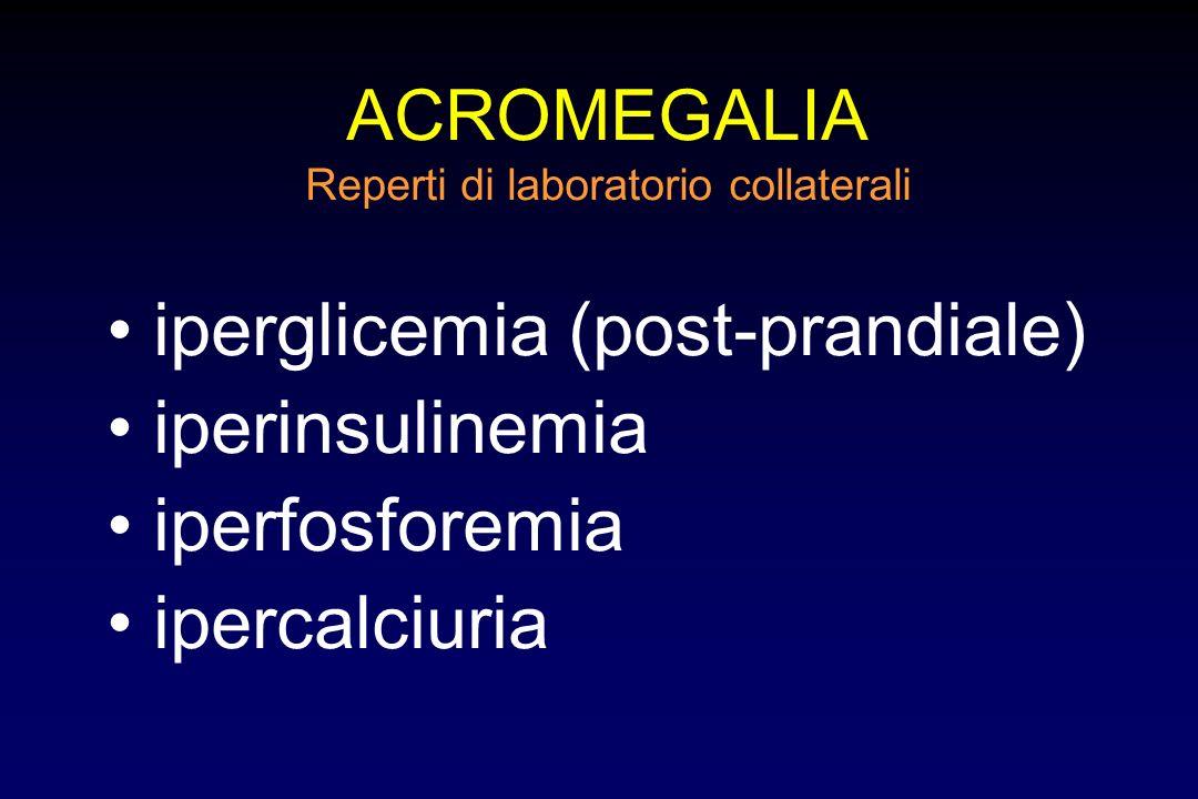 ACROMEGALIA Segni e sintomi più comuni in 434 pazienti modificazioni somatiche100%torpore mentale33% ispessimento tessuti molli 96%astenia33% parestes