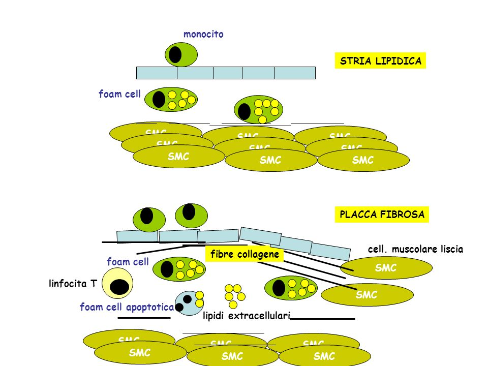 monocito foam cell apoptotica STRIA LIPIDICA PLACCA FIBROSA SMC cell. muscolare liscia foam cell lipidi extracellulari fibre collagene SMC linfocita T