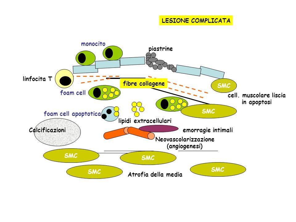 monocito foam cell apoptotica lipidi extracellulari fibre collagene piastrine SMC cell. muscolare liscia in apoptosi LESIONE COMPLICATA Neovascolarizz