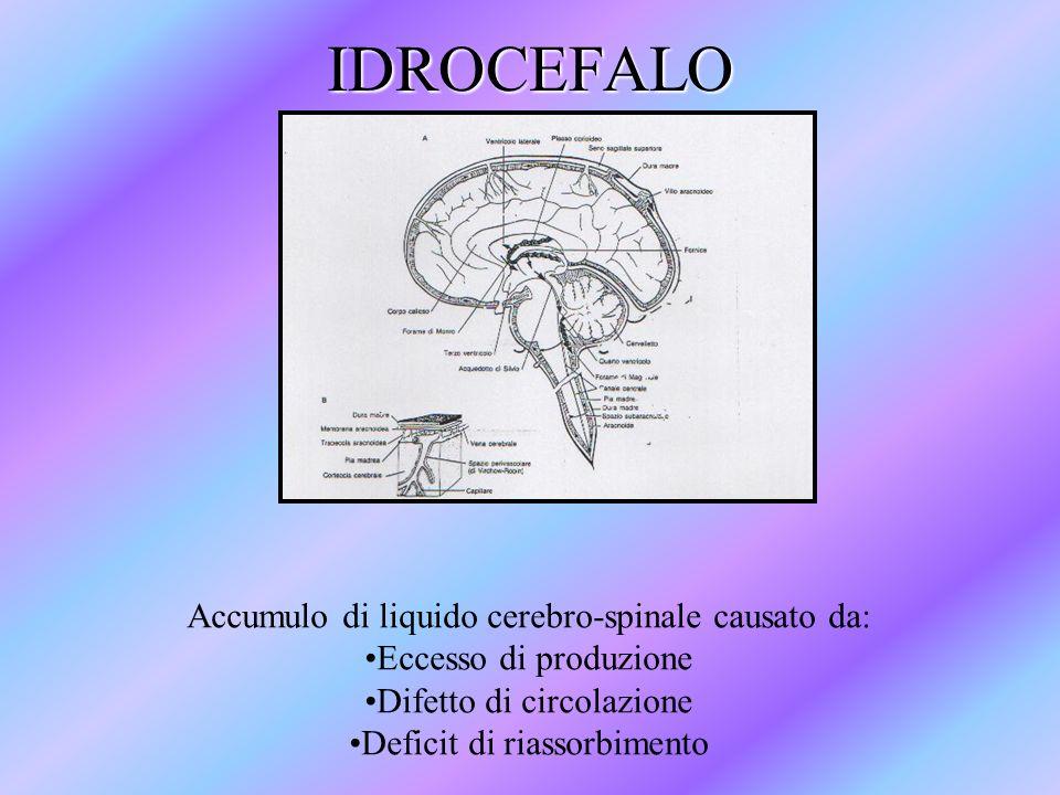 IDROCEFALO Accumulo di liquido cerebro-spinale causato da: Eccesso di produzione Difetto di circolazione Deficit di riassorbimento