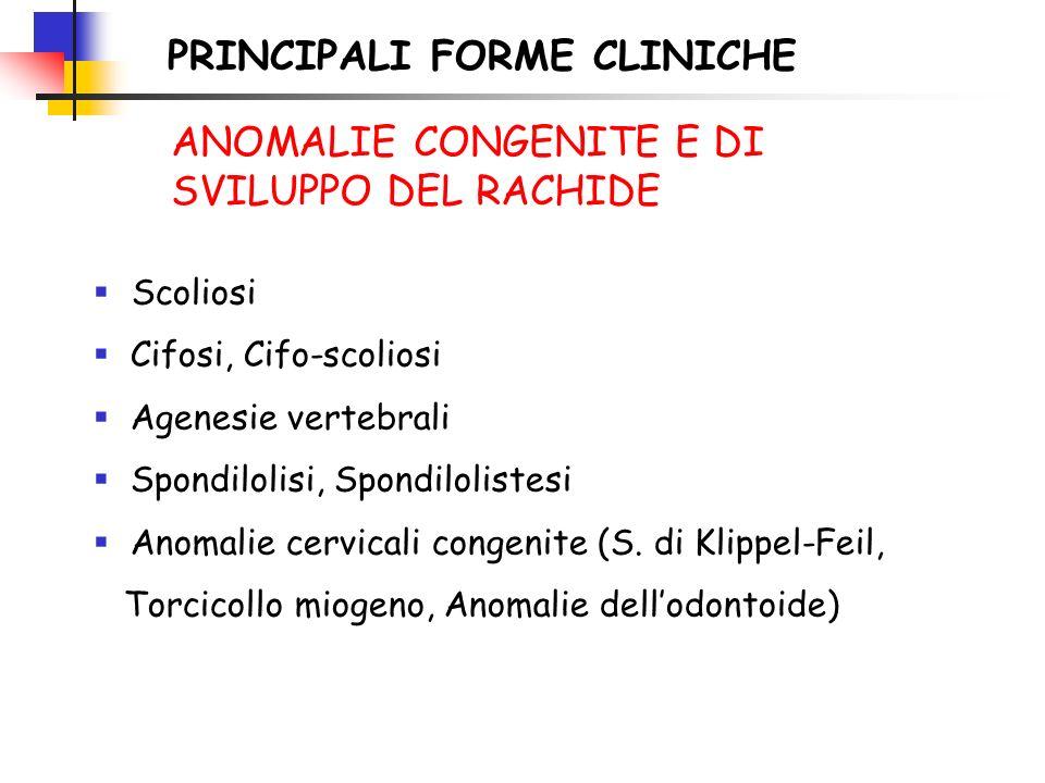 PRINCIPALI FORME CLINICHE Scoliosi Cifosi, Cifo-scoliosi Agenesie vertebrali Spondilolisi, Spondilolistesi Anomalie cervicali congenite (S. di Klippel