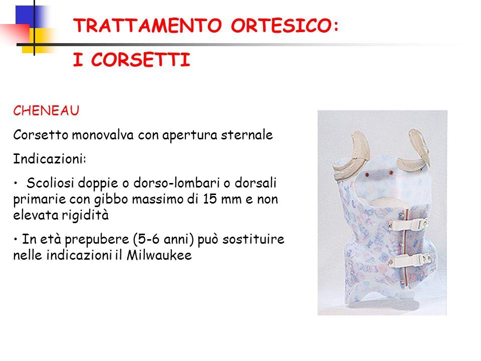 TRATTAMENTO ORTESICO: I CORSETTI CHENEAU Corsetto monovalva con apertura sternale Indicazioni: Scoliosi doppie o dorso-lombari o dorsali primarie con