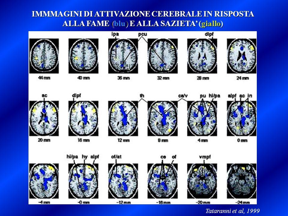 IMMMAGINI DI ATTIVAZIONE CEREBRALE IN RISPOSTA ALLA FAME (blu) E ALLA SAZIETA (giallo) Tataranni et al, 1999