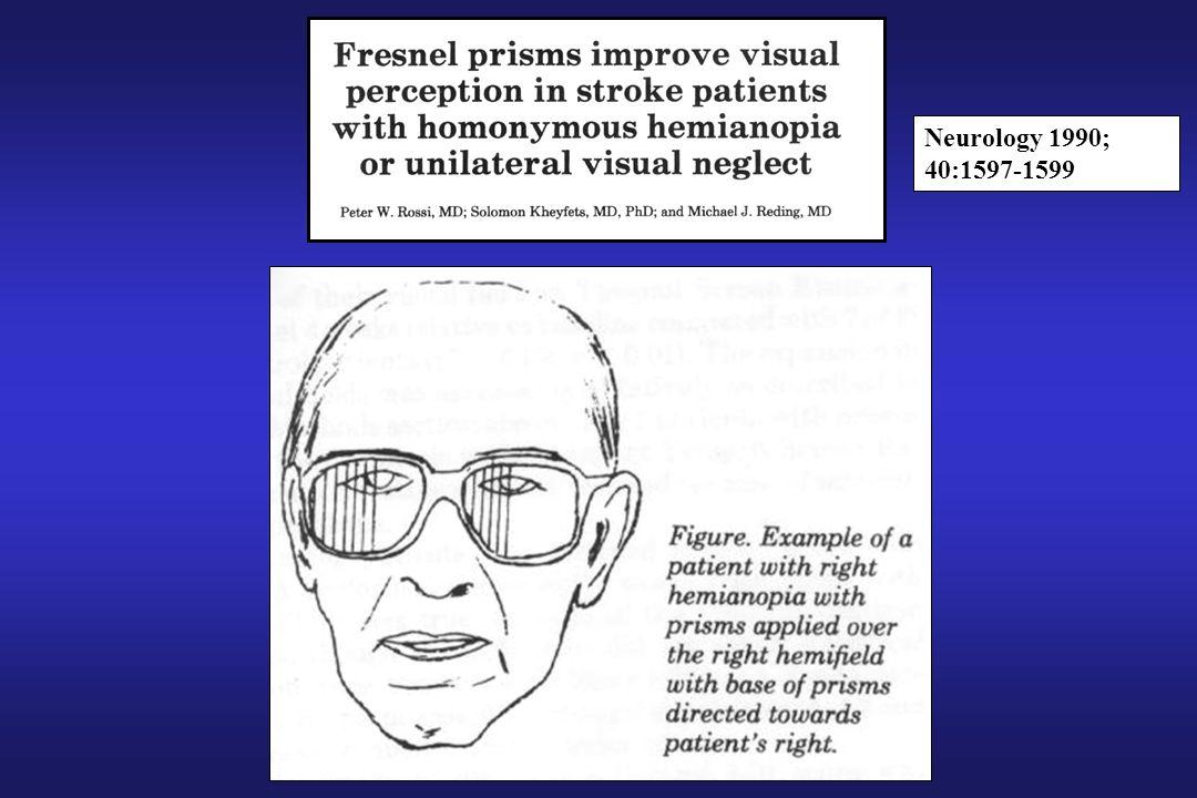 Neurology 1990; 40:1597-1599